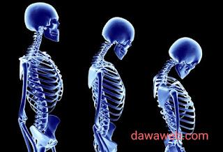 الظهر منحنى من أشهر مظاهر إصابة العظام بالهشاشة