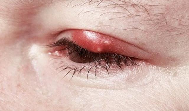 8 Cara Gampang Sembuhkan Bintilan Mata