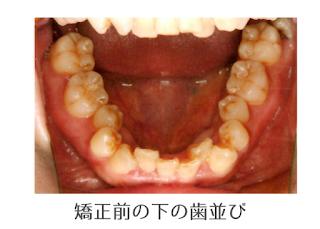 歯科矯正の抜歯とEラインについて