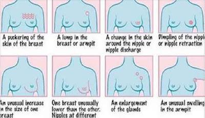 Tanda - tanda kanker payudara