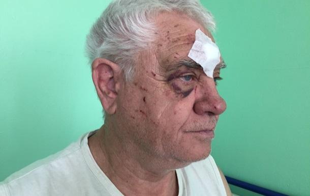 У Харкові коп побив пенсіонера за вимогу поступитися місцем у трамваї - ЗМІ