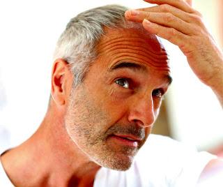 Alopecia calvicie tratamiento láser