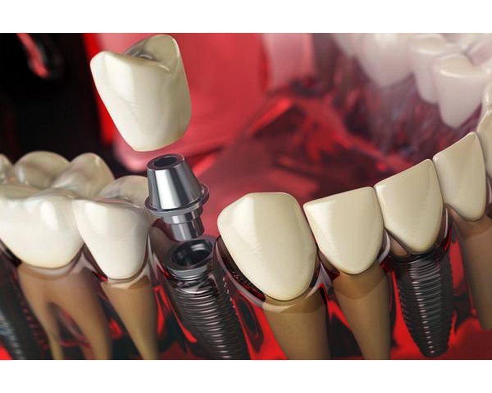 Implantes Dentales