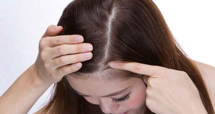 Cara Menghilangkan Ketombe Menurut Pakar Rambut