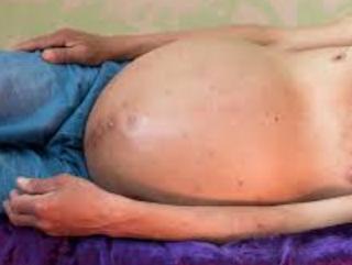 Penyebab Penyakit Liver Kronis Dengan Perut Membesar