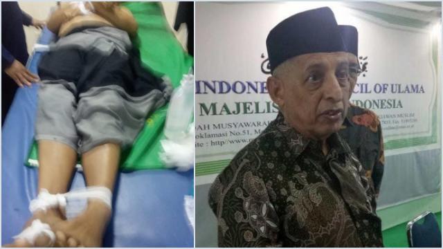 MUI Desak Polisi Usut Kasus Penembakan Ustaz di Tangerang, Siapa Pelaku dan Dalang di Baliknya