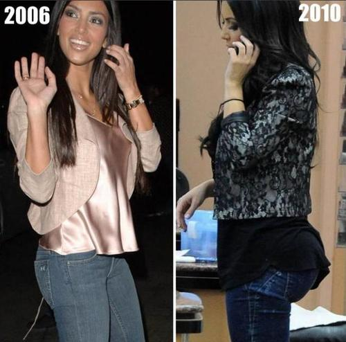 Celebrities With Butt Implants 53