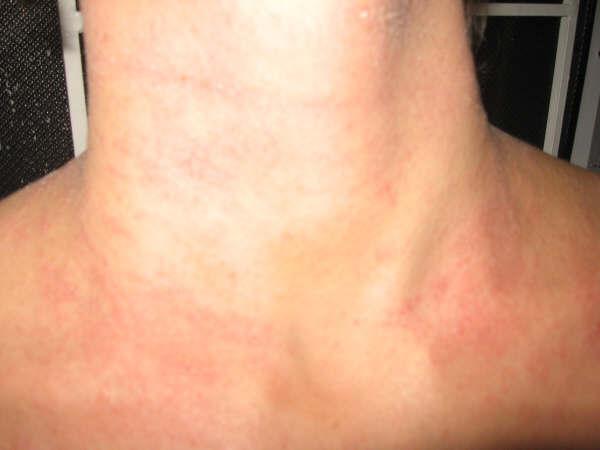 Photos Of Eczema On Adults Neck  Treatment For Eczema -9431