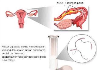 Penyebab Kemandulan Pada Wanita Dan Pria