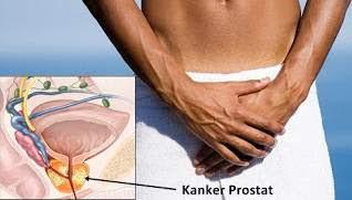 Cara Sederhana Atasi Penyakit Prostat