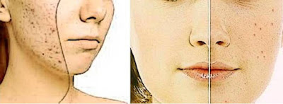 Decide Effective Treatment of Acne Scars to Get Best Results