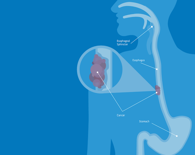 http://cancer-treatment-madurai.com/stomach-and-oesophagus-cancer.html