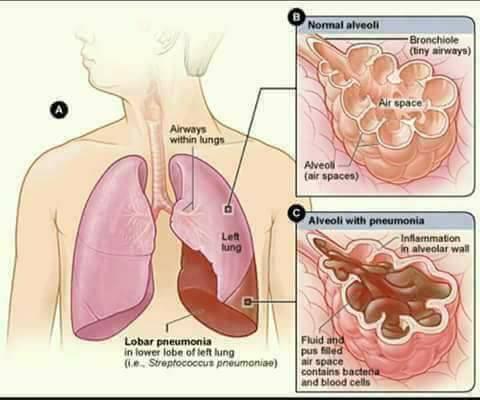 milagros untuk paru-paru basah