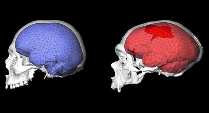 Maymun Beynine İnsan Geni Enjekte Edildi! İşte Sonuç
