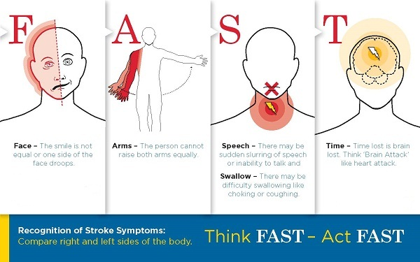 Stroke Lifesaving Tips