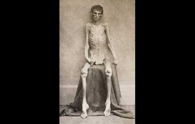 A nearly-starved Union soldier who survived imprisonment in the notorious Confederate prison in Andersonville, Georgia.
