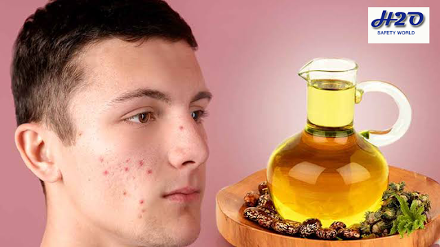 castor oil,castor oil for acne,castor oil for acne scars,castor oil for face,castor oil for skin,castor oil benefits,castor oil uses,how to use castor oil,castor oil for hair,castor oil on face,castor oil for hair growth,how to use castor oil for acne scars,how to apply castor oil for acne scars,castor oil for acne cyst,castor oil acne,castor oil for acne reviews