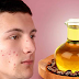 Using Castor Oil To Treatment Acne