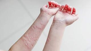 9 Obat Tradisional Alami untuk Meredakan Penyakit Biduran