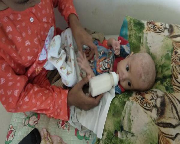 Diberi Susu Kental Manis, Bayi ini Malah Alami Gizi Buruk Hingga Kulitnya Terkelupas