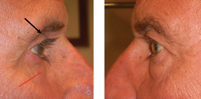 Glaucoma Drops Repurposed to Reduce Under Eye Bags - Eyedolatry