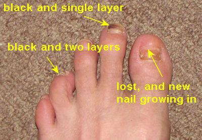 black and missing toenails