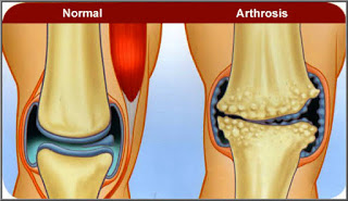 What Is Arthrosis? Types, Symptoms, Diet, Home Remedies