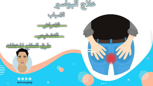 البواسير-الأسباب والأعراض وطرق العلاج والأدوية الفعالة-تكنوصيدلي