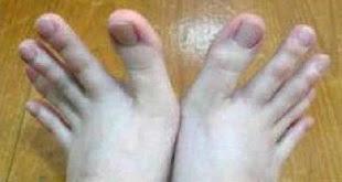 Dedos de la mano o de los pies? Se va a sorprender cuando lo sepa.