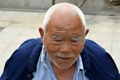 Hair Loss In Elderly Men