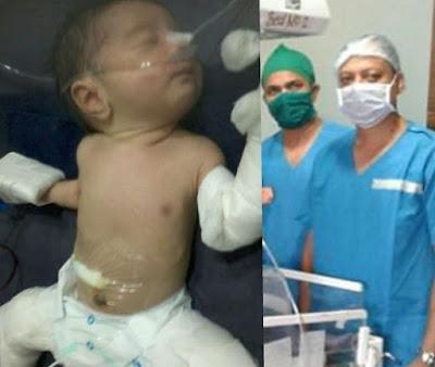 fetus in fetu survivor india