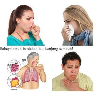 Tips Dan Cara Mengobati Batuk Di Sertai Pilek Dan Flu Secara Herbal Alami