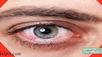 أسباب احمرار العين وطرق العلاج وطرق الوقاية