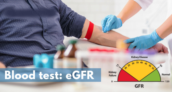 Glomerular Filtration Rate (GFR) Test