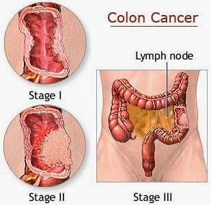Stage 3 Colon Cancer Survival Rate