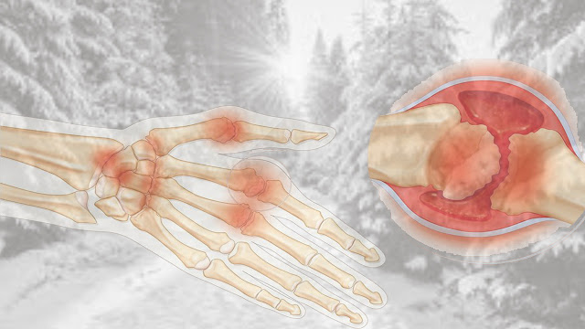 Why do joints and bones ache in the winter