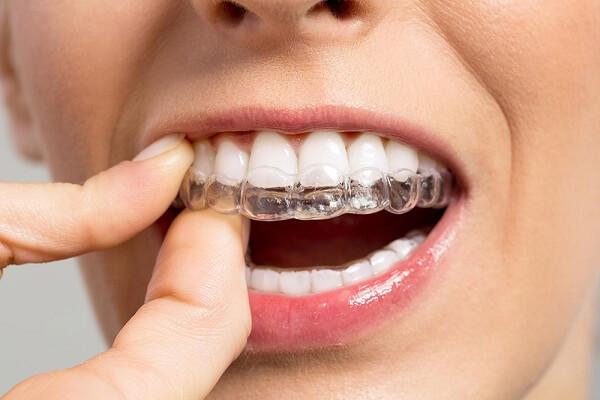 Kết quả hình ảnh cho Bệnh nhân có thể hoàn toàn yên tâm bởi lớp men răng