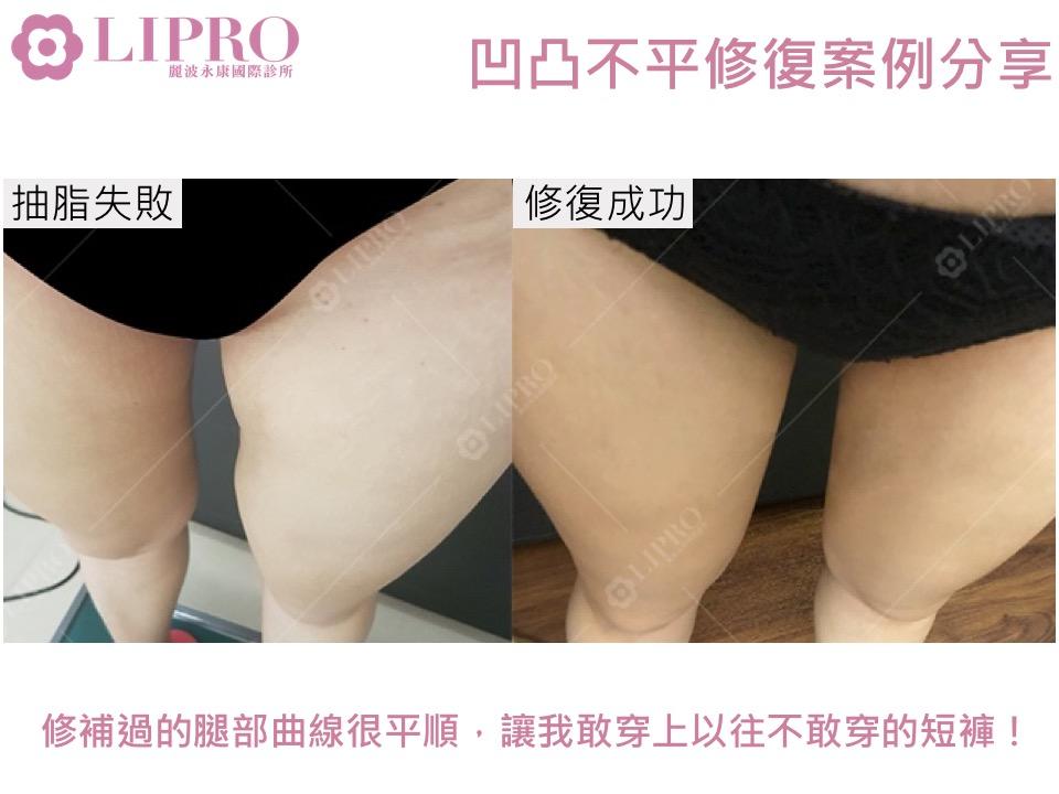 大腿凹凸不平 大腿重修 大腿抽脂 抽脂二次重修