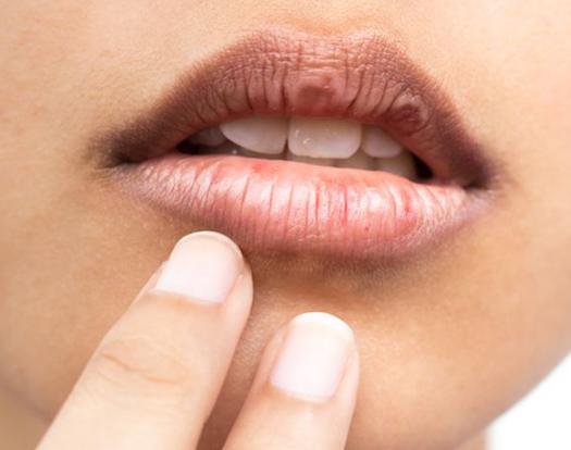 10 Cara Membuat Bibir Merah Alami Dengan Cepat Dan Permanen : Best Of Content