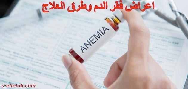 اعراض فقر الدم وطرق العلاج