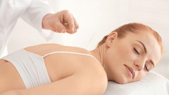 Manfaat Akupunktur Bisa Membantu Untuk Mempercepat Dapatkan Anak