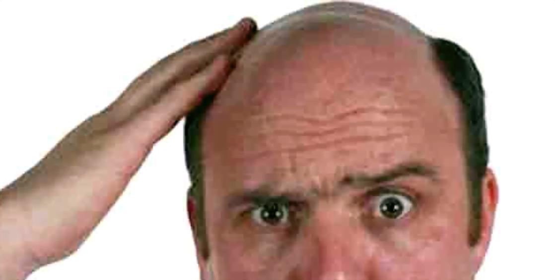 7 Cara Paling Ampuh Untuk Mengatasi Rambut Rontok Dengan ...