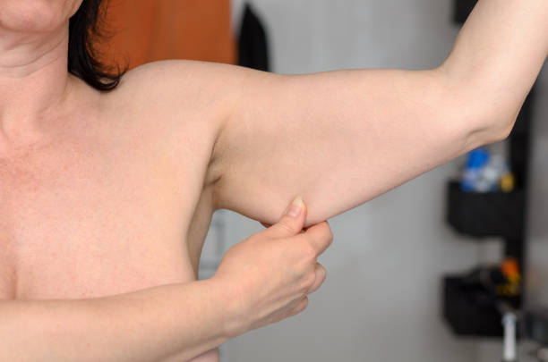 07 Tips on How to Take care of saggy, saggy skin after losing weight