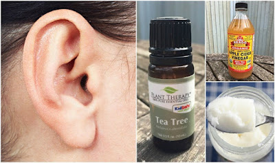How To Get Rid Of Ear Wax: 6 Home Remedies That Really Work
