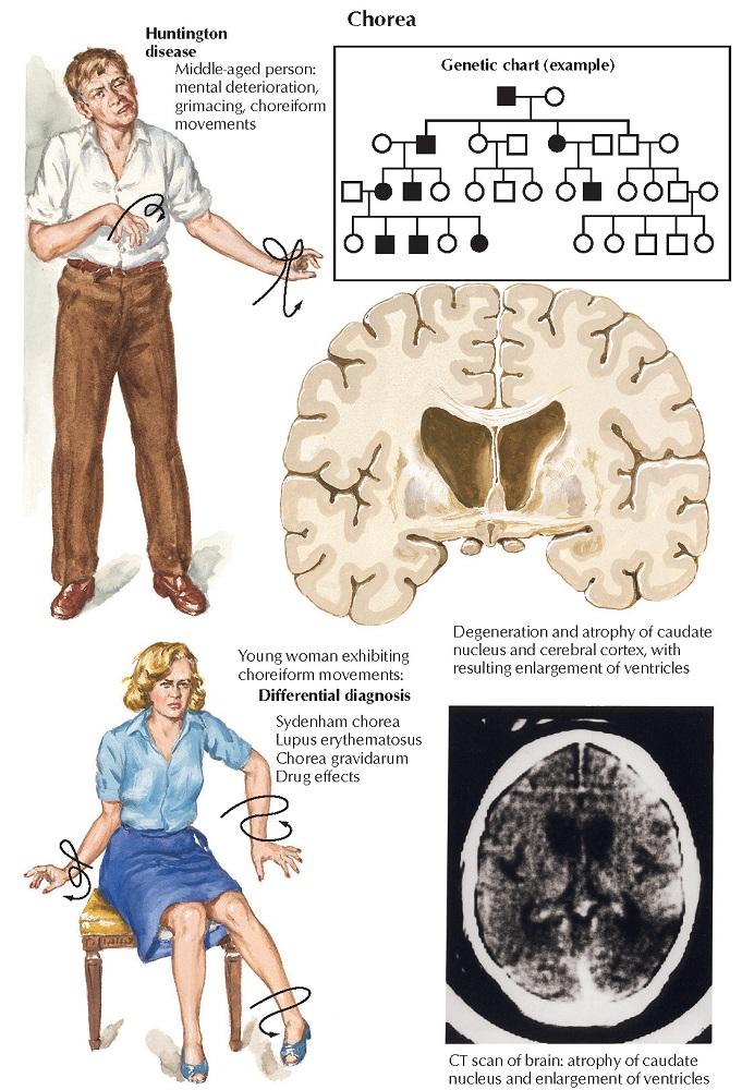 Huntington Disease and Tourette Syndrome