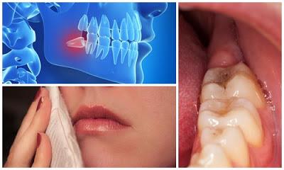Lợi trùm khi mọc răng khôn điều trị ra làm sao? 1