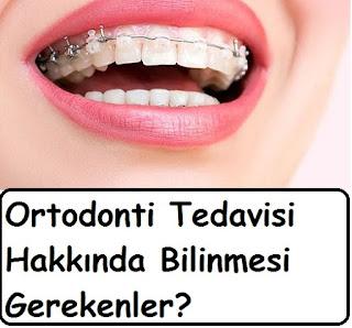 Ortodonti Tedavisi Hakkında Bilinmesi Gerekenler