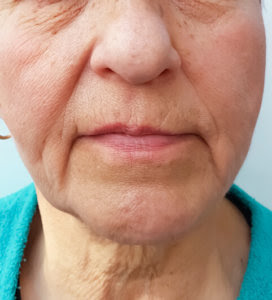 sagging skin after weight loss