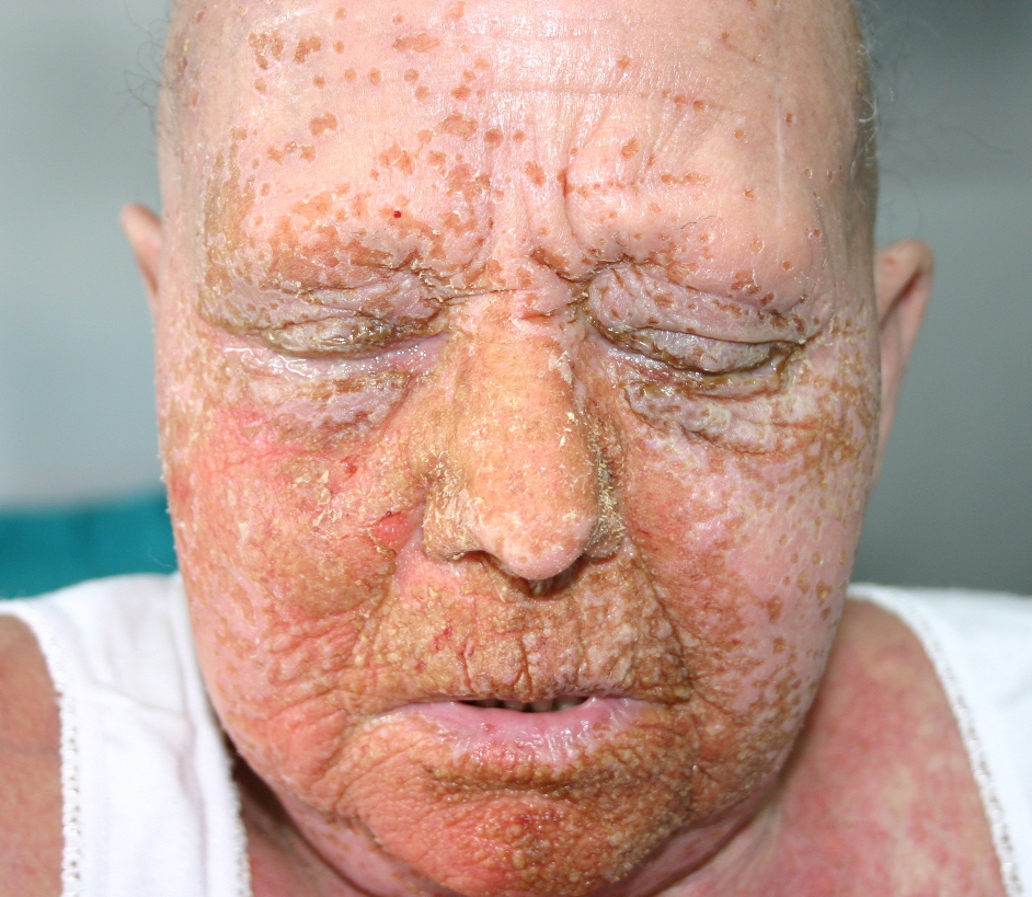 Herpetic Whitlow in Adults: Condition, Treatments, and ...