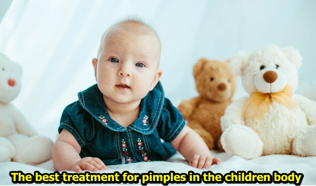 The best treatment for pimples in the children body